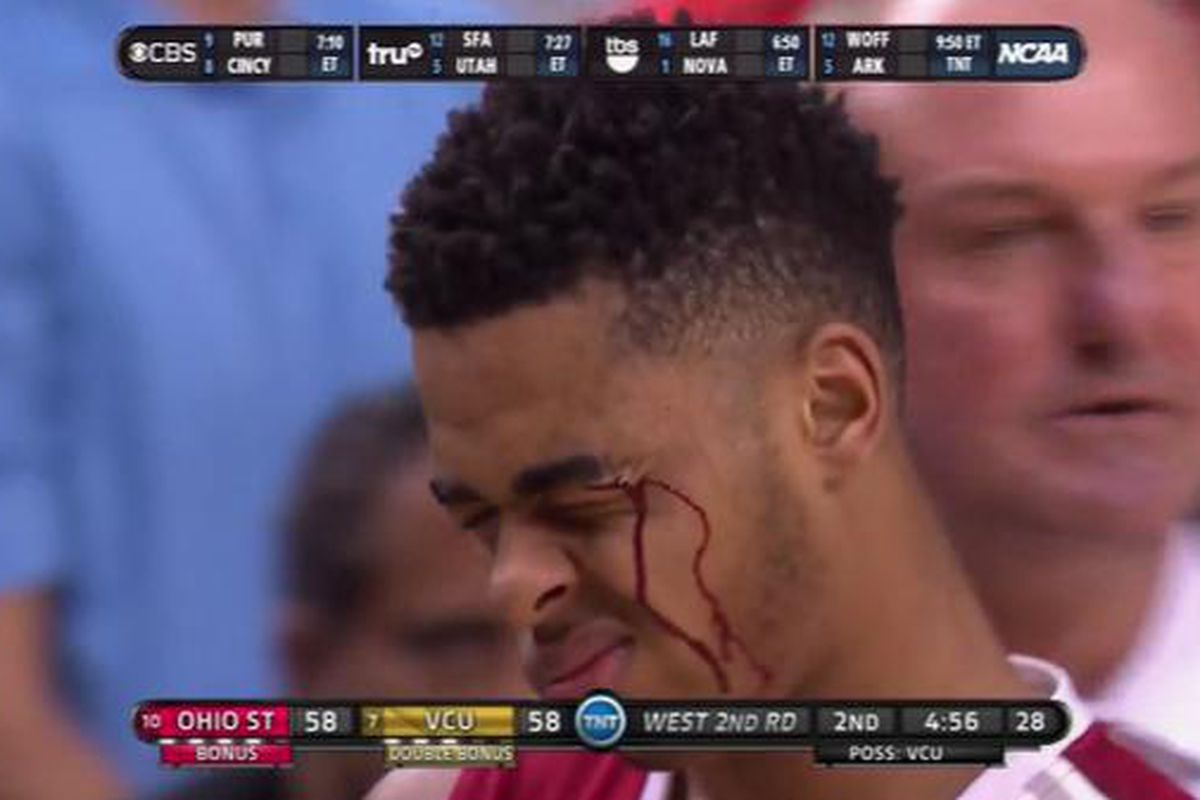 Dangelo Russells Face Covered With Blood After Elbow To The Face