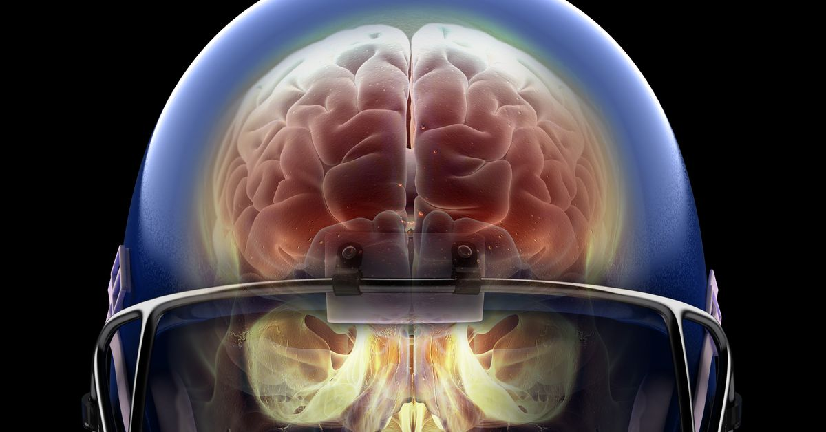 Football Alters Brains Of Kids As Young >> Super Bowl 2019 Football Concussions The Link Between Head