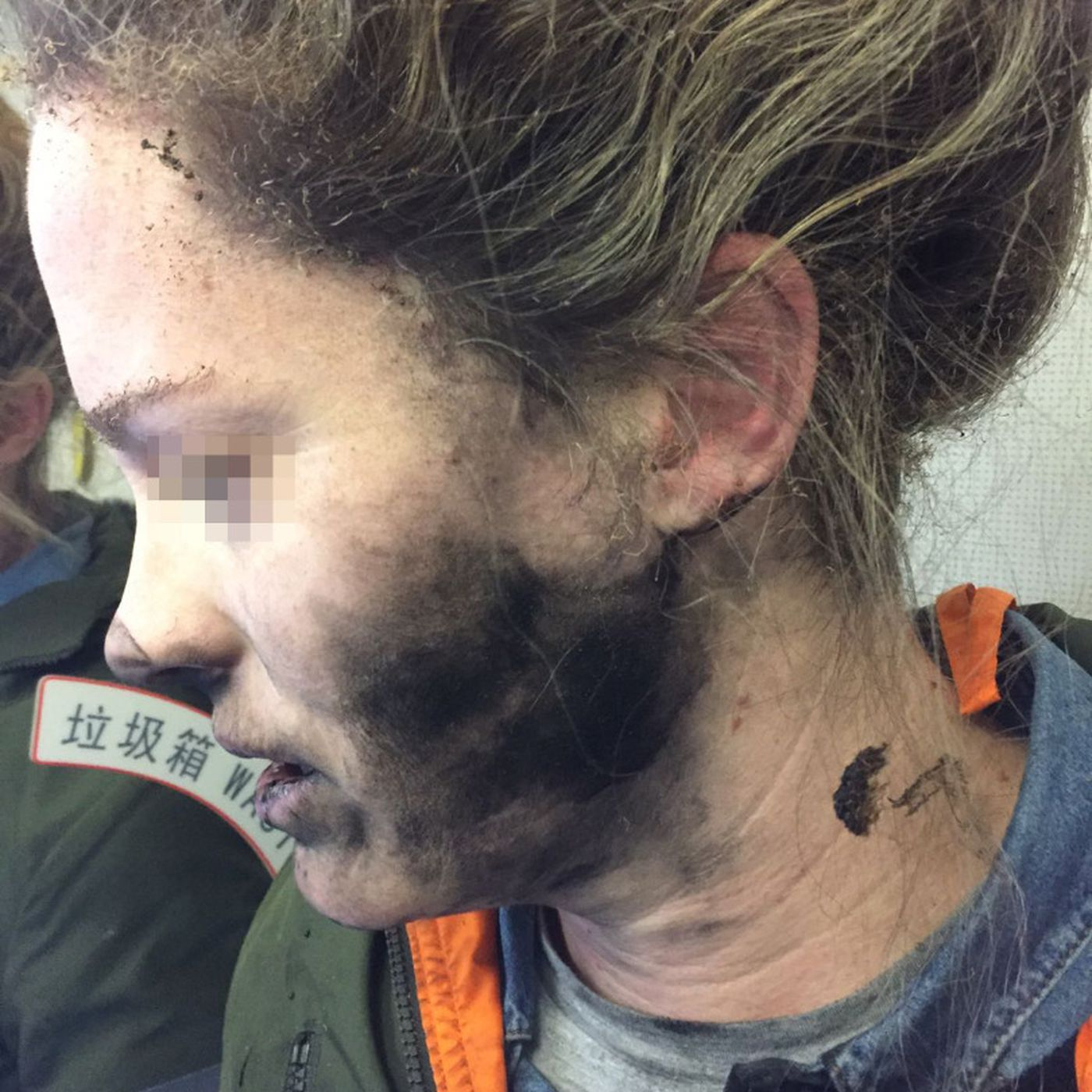 Woman was reportedly burned by Beats headphones 4cd110c913