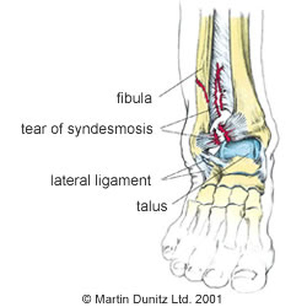 Lateral Ankle Anatomy Images - human body anatomy