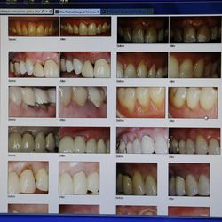Before and after photos of Pinhole Gum Rejuvenation are displayed in Midvale Friday, May 30, 2014. The technique repairs receding gums instead of the older grafting technique. Healing is quicker, no cutting or grafting are required, and costs are lower.