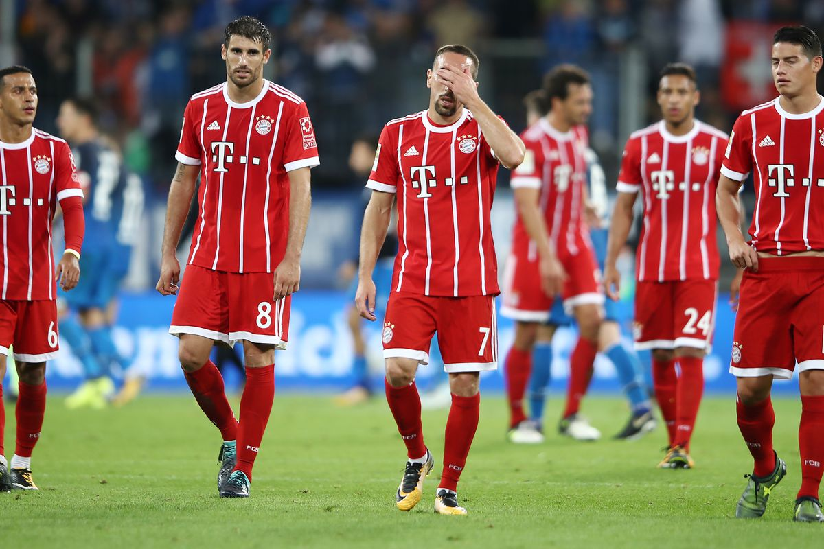 Bayern Lose