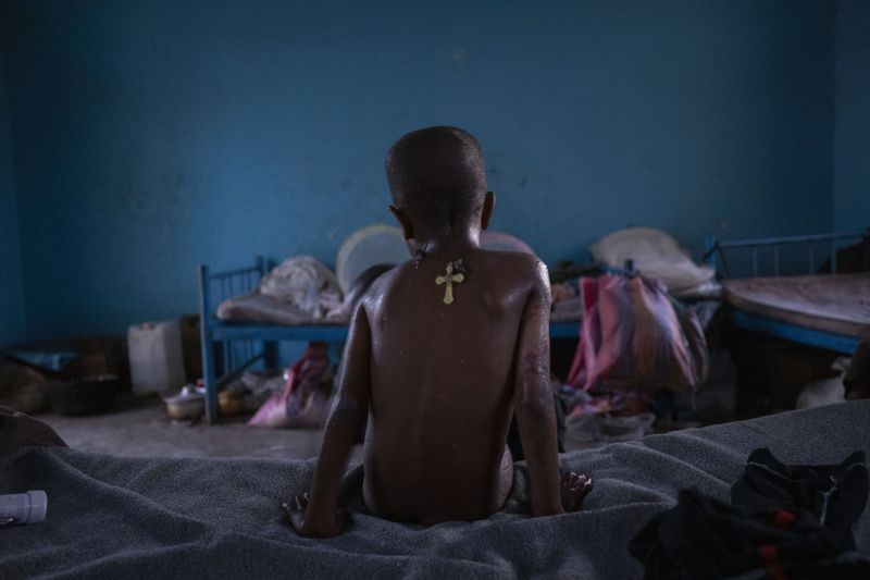 Micheale Gebremariam waits for his father Abraha Kinfe Gebremariam to bathe him after waking up early in their shelter in Hamdayet, eastern Sudan, near the border with Ethiopia.