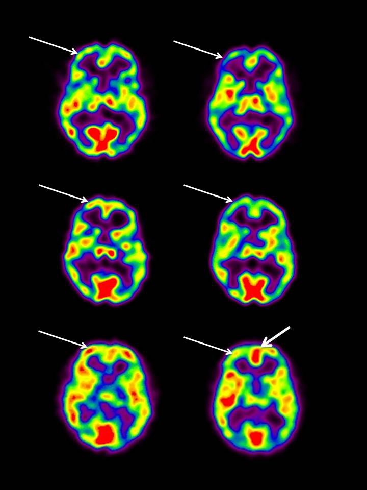 Brain scans from a study conducted by Dr. Andrew Newberg show the changes that accompany intensive Islamic prayer.