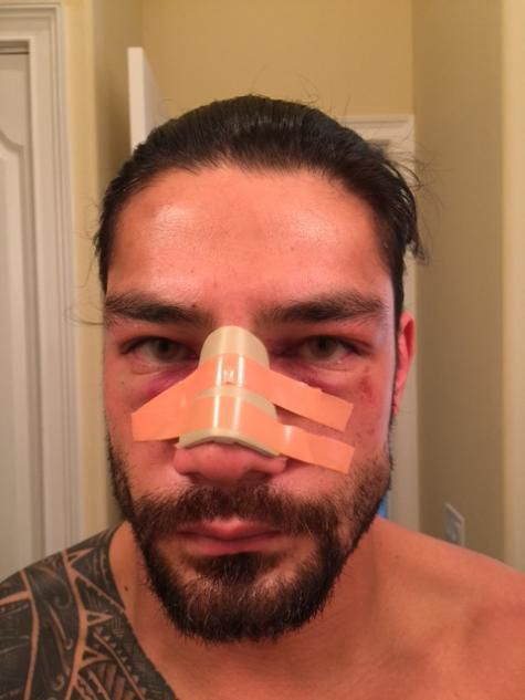 WWE reports Roman Reigns had surgery to fix a deviated septum, no