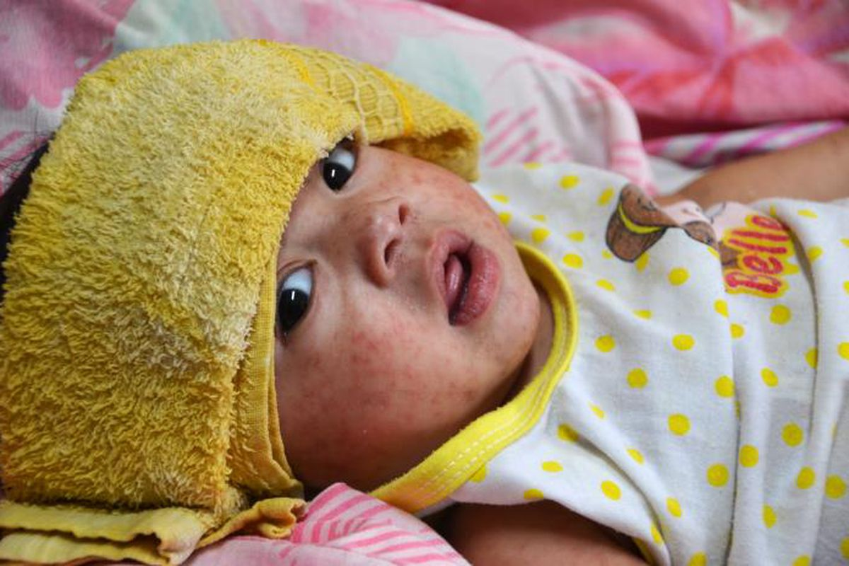 Measles are coming back because of vaccination loopholes