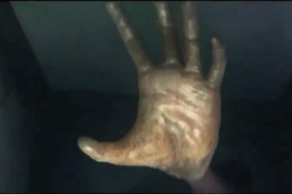 P.T. giant hand