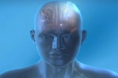Deep brain stimulation DBS Medtronic