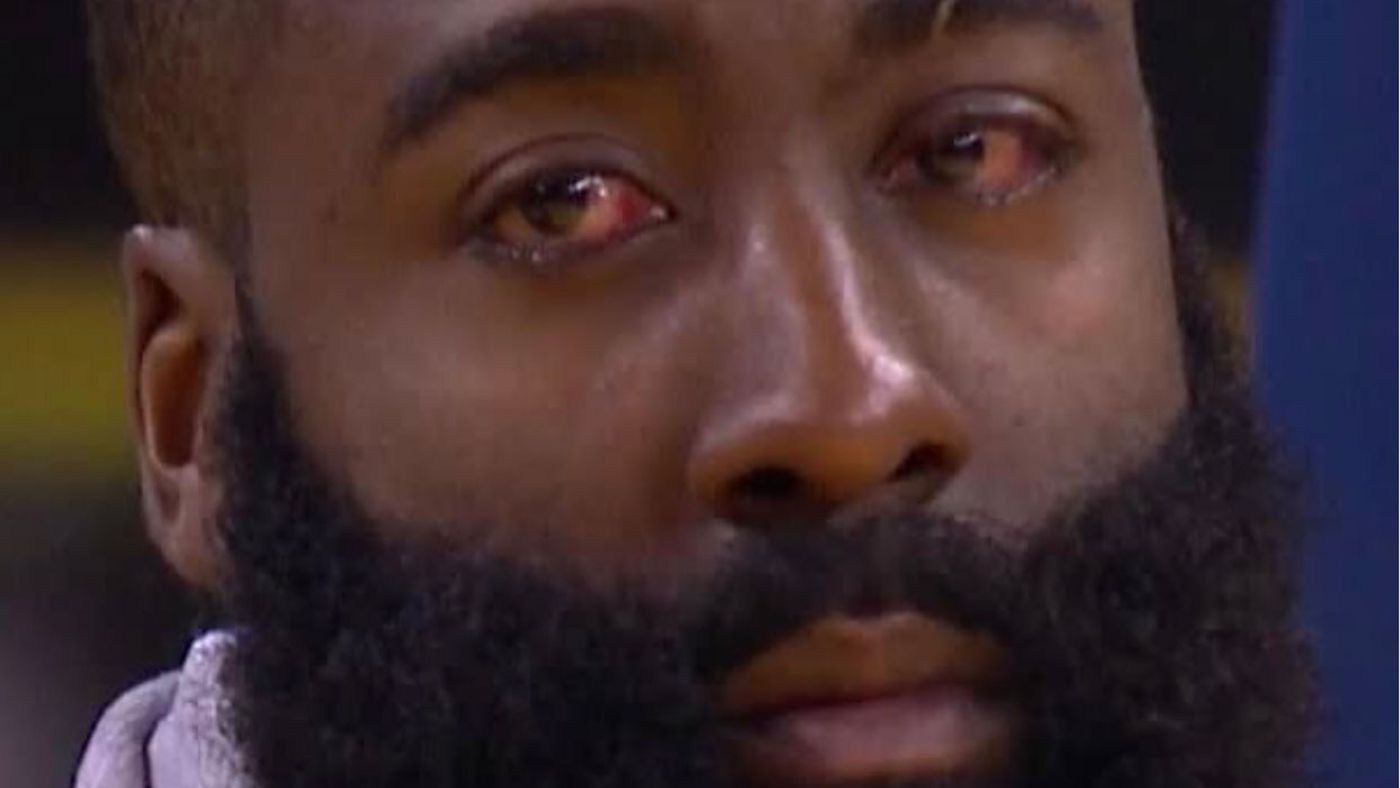 James Harden's Eye Injury Is Pretty Bad But The Memes Are So Great