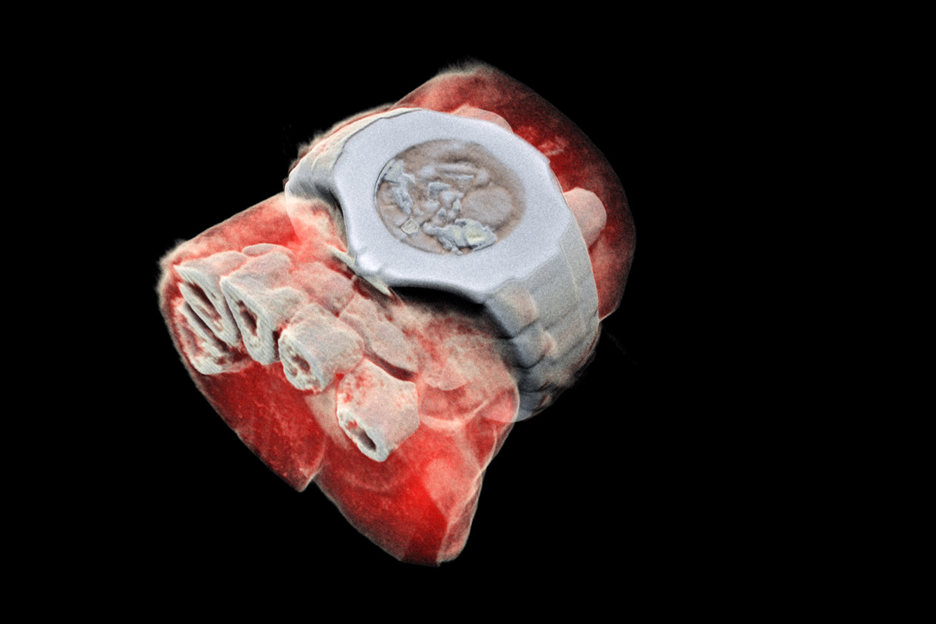 these 3d x rays are spectacular and really gross
