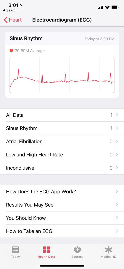 Apple Watch electrocardiogram and irregular heart rate