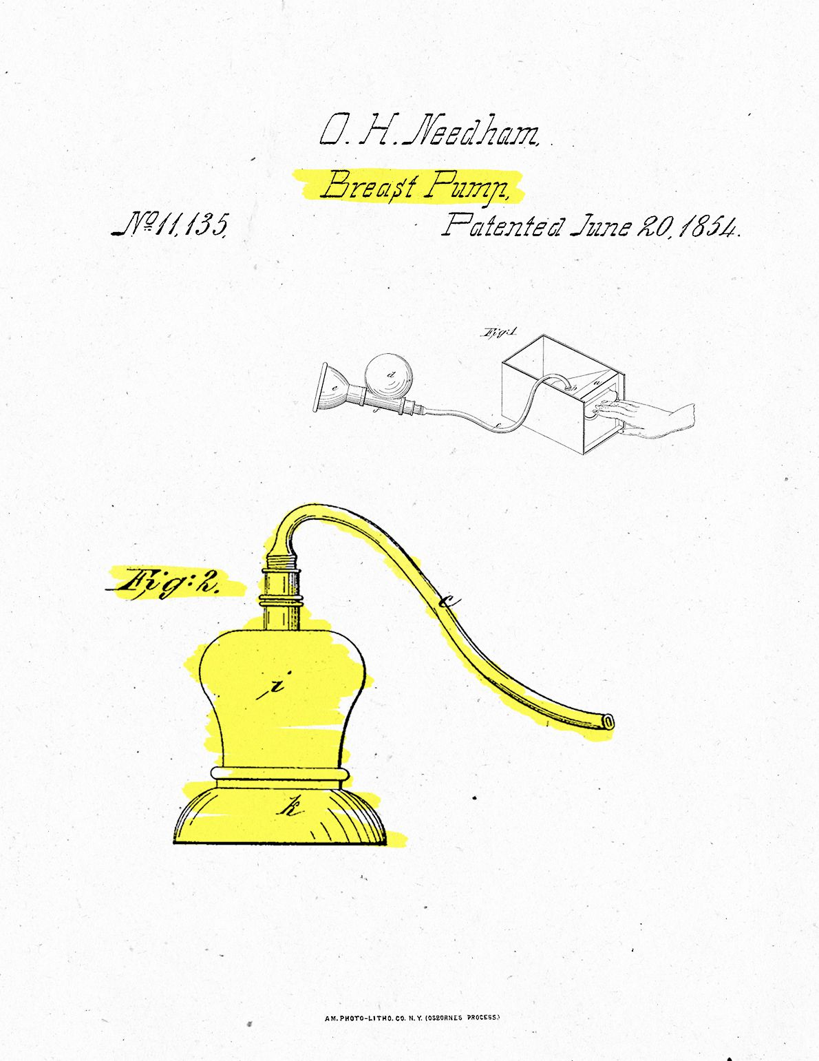 Orwell H. Needham filed a patent for the first breast pump in 1854. It closely mimicked similar products used to milk animals.