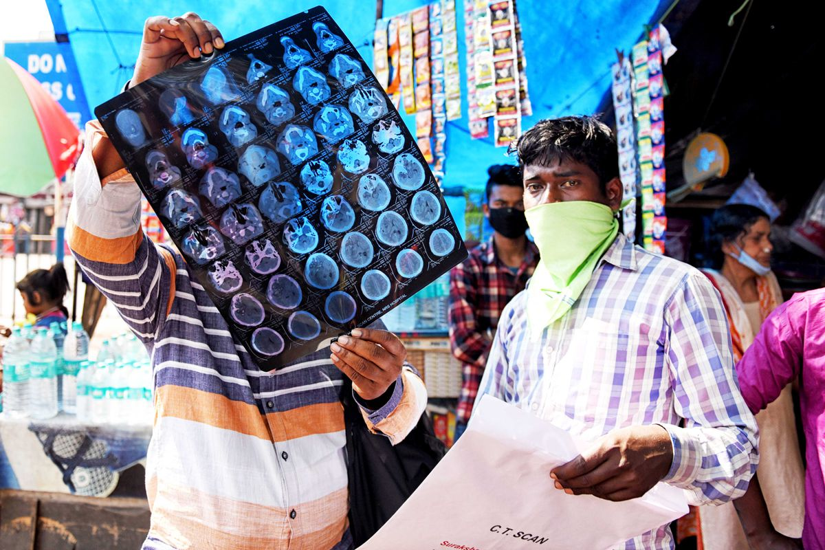 A patient with flu-like symptoms checks a CT scan in Kolkata, India.