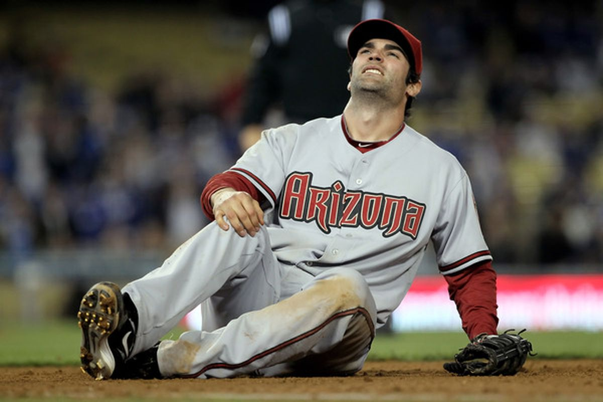 Yes, playing for the D-backs is painful, Conor. You are now free, though! (Photo by Jeff Gross/Getty Images)