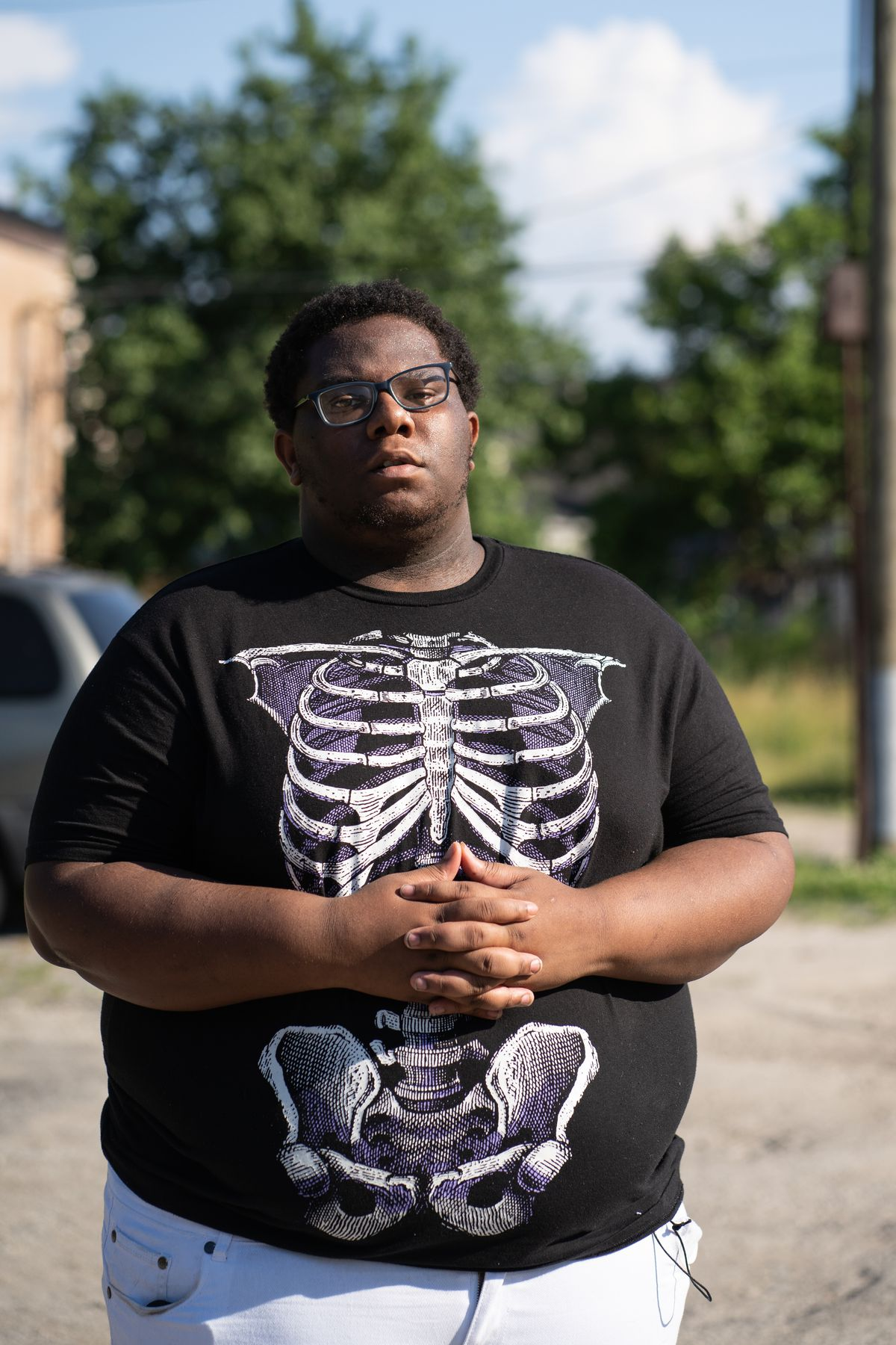 A young man wearing glasses and a black skeleton t-shirt stands with his hands interlaced on a sunny day.