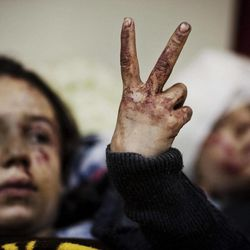 FILE - In this Saturday, March 10, 2012 file photo, Hana, 12, flashes the victory sign next to her sister Eva, 13, as they recover from severe injuries after the Syrian Army shelled their house in Idlib, north Syria. A new report by the British charity Save the Children documents atrocities in Syria's 18-month-old civil war that have left thousands of children dead and many more traumatized.