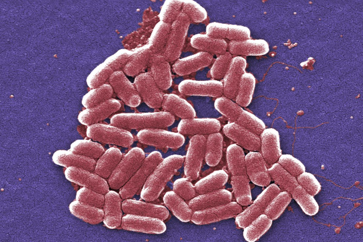 FILE - This 2006 colorized scanning electron micrograph image made available by the Centers for Disease Control and Prevention shows a strain of the Escherichia coli bacteria.