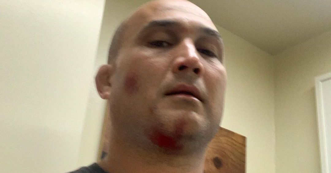 Morning Report: B.J. Penn recounts harrowing near-death experience: 'I got sucked into a wave pool engine room'
