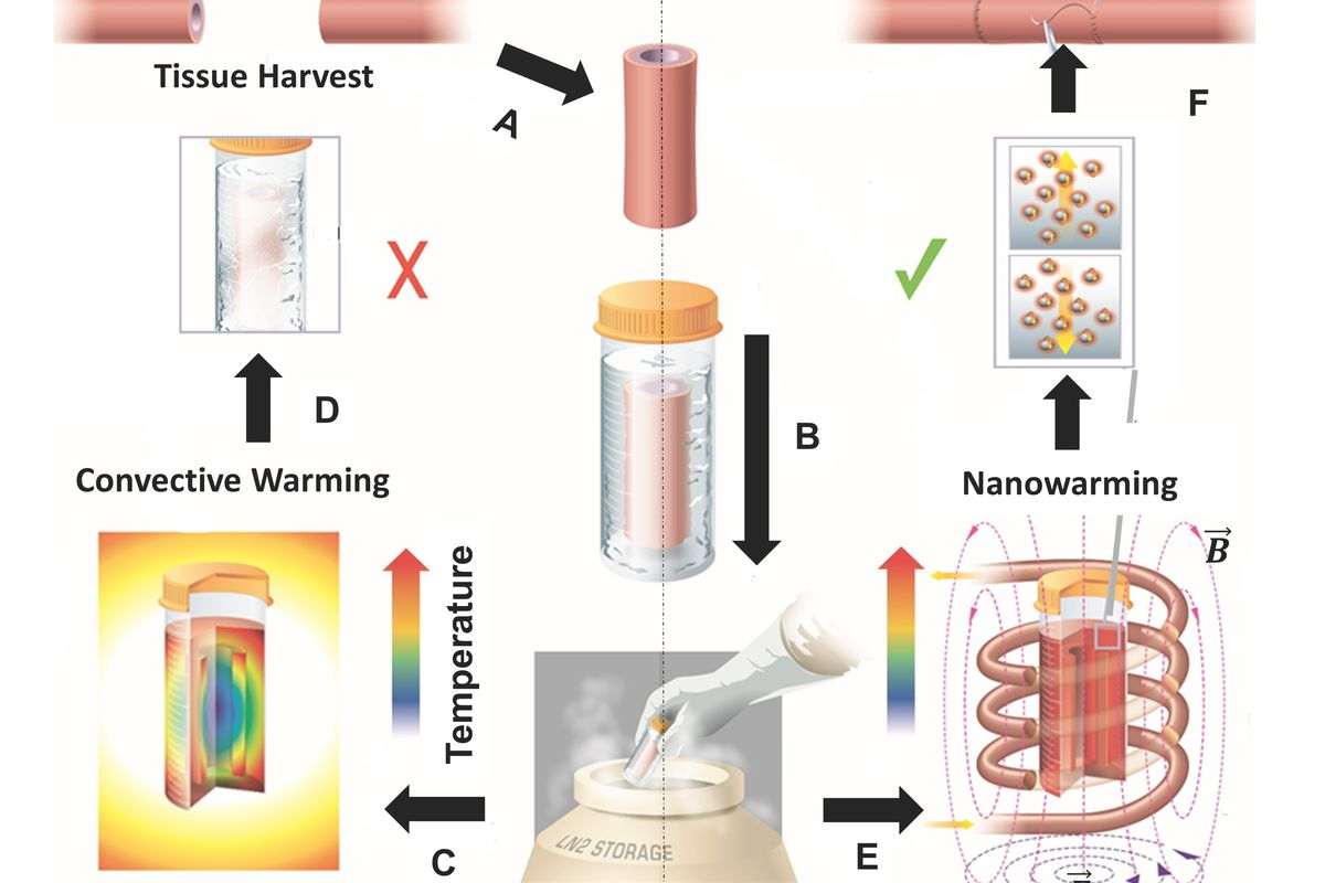 A new way to warm up frozen tissue could help with the organ ...