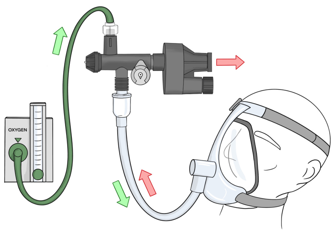 A diagram of the Illinois RapidVent developed by engineers at the University of Illinois at Urbana-Champaign shows how the product would function when attached to a patient to help them breath.