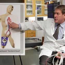 Dr. James Revenaugh talks about the procedure they did with patient Stephan Summerill at IMC in Murray  Wednesday, Nov. 9, 2011. The cardiologists at the Intermountain Medical Center Heart Institute made medical history last week when they combined two highly-specialized technologies into one life-changing procedure for the Idaho man.