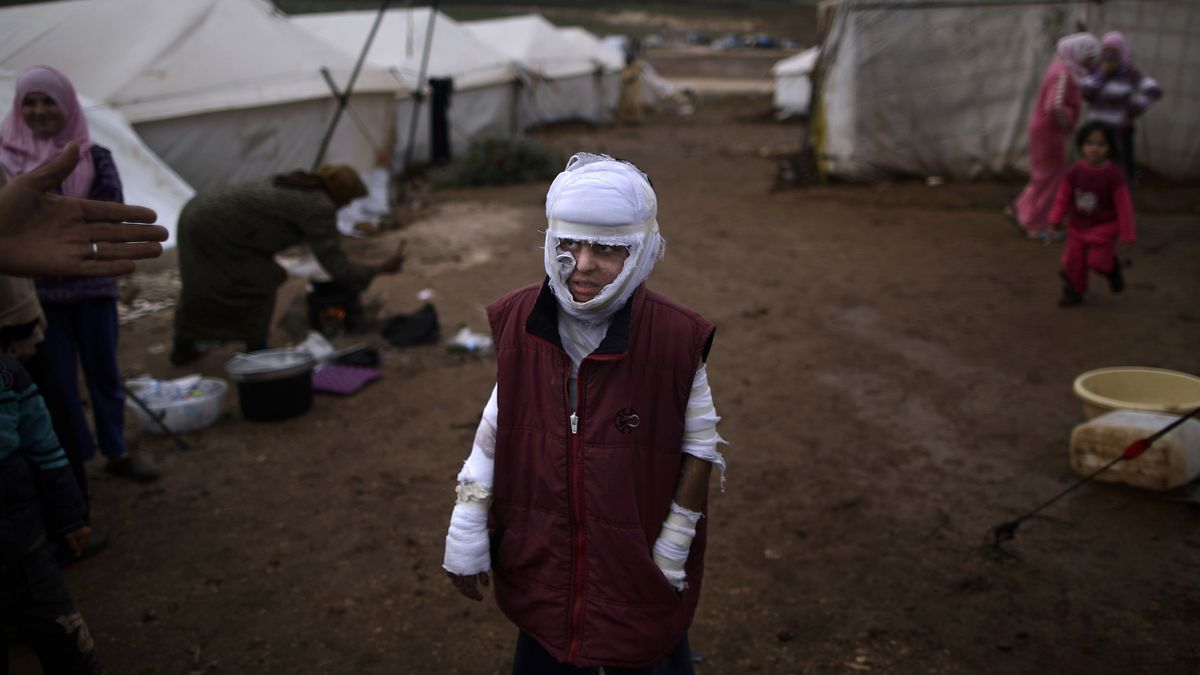 Abdullah Ahmed, a child burned in a Syrian goverment airstrike, in a displaced persons camp in Atmeh, Syria.
