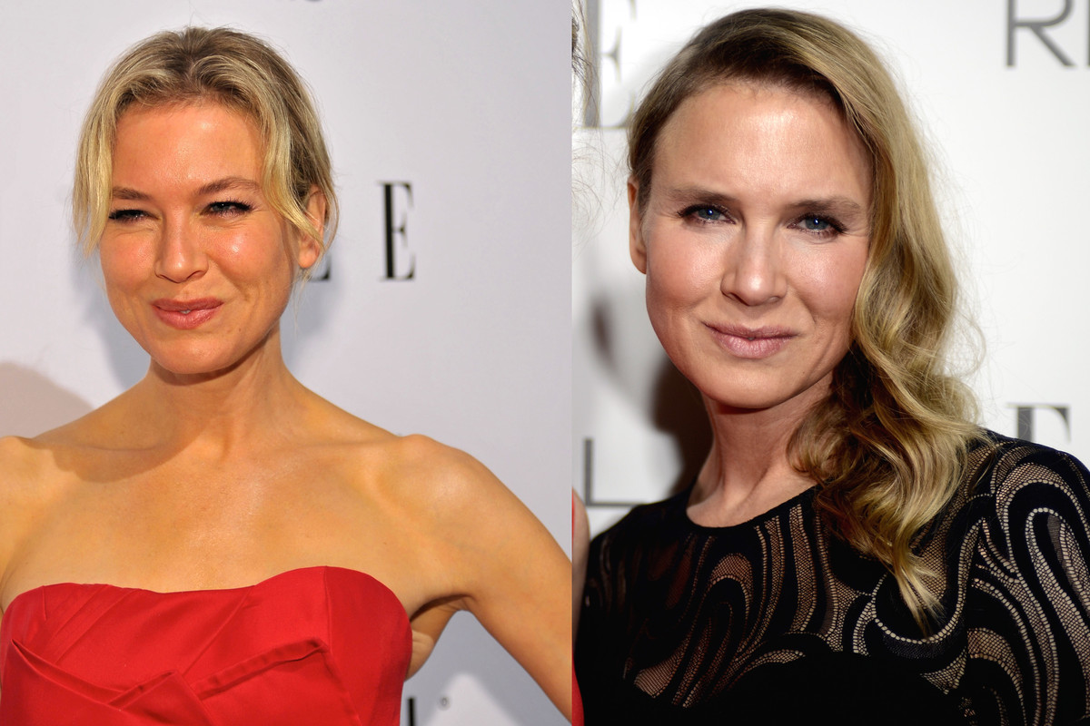 Renee Zellweger at the Elle Women of Hollywood awards in 2009 (left) and 2014 (right)