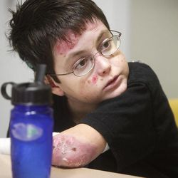 In a Nov. 22, 2011 photo, seventh-grader Shane DiGiovanna sits at his desk during class at Seven Hills School in Cincinatti. DiGiovanna has a severe, rare skin disease called Epidermolysis Bullosa which makes his skin blister and tear easily. The Montgomery teen spends each day with 40 percent of his body wrapped in bandages. Shane is obsessed with NASA and wants to work for it some day and be involved in space exploration.