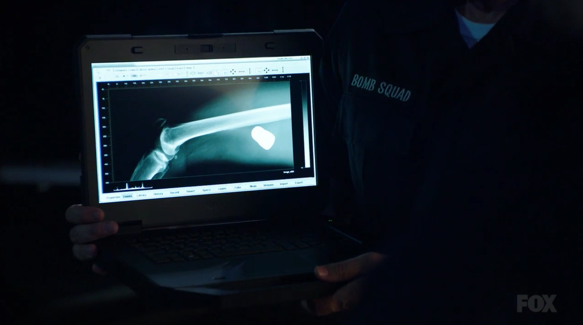X-ray of a leg showing a live grenade inside