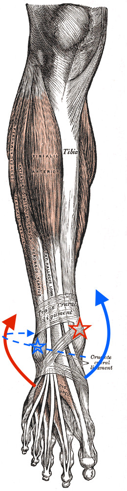 Examining The Irish Ankle Fractures One Foot Down