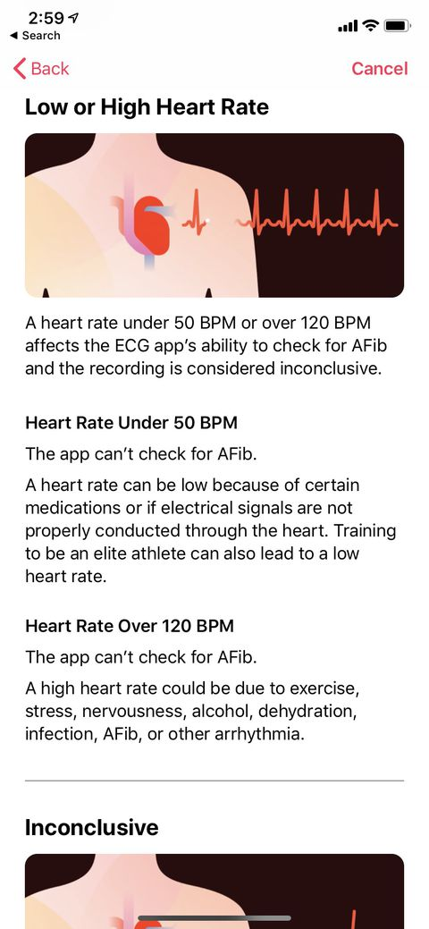 Apple Watch electrocardiogram and irregular heart rate