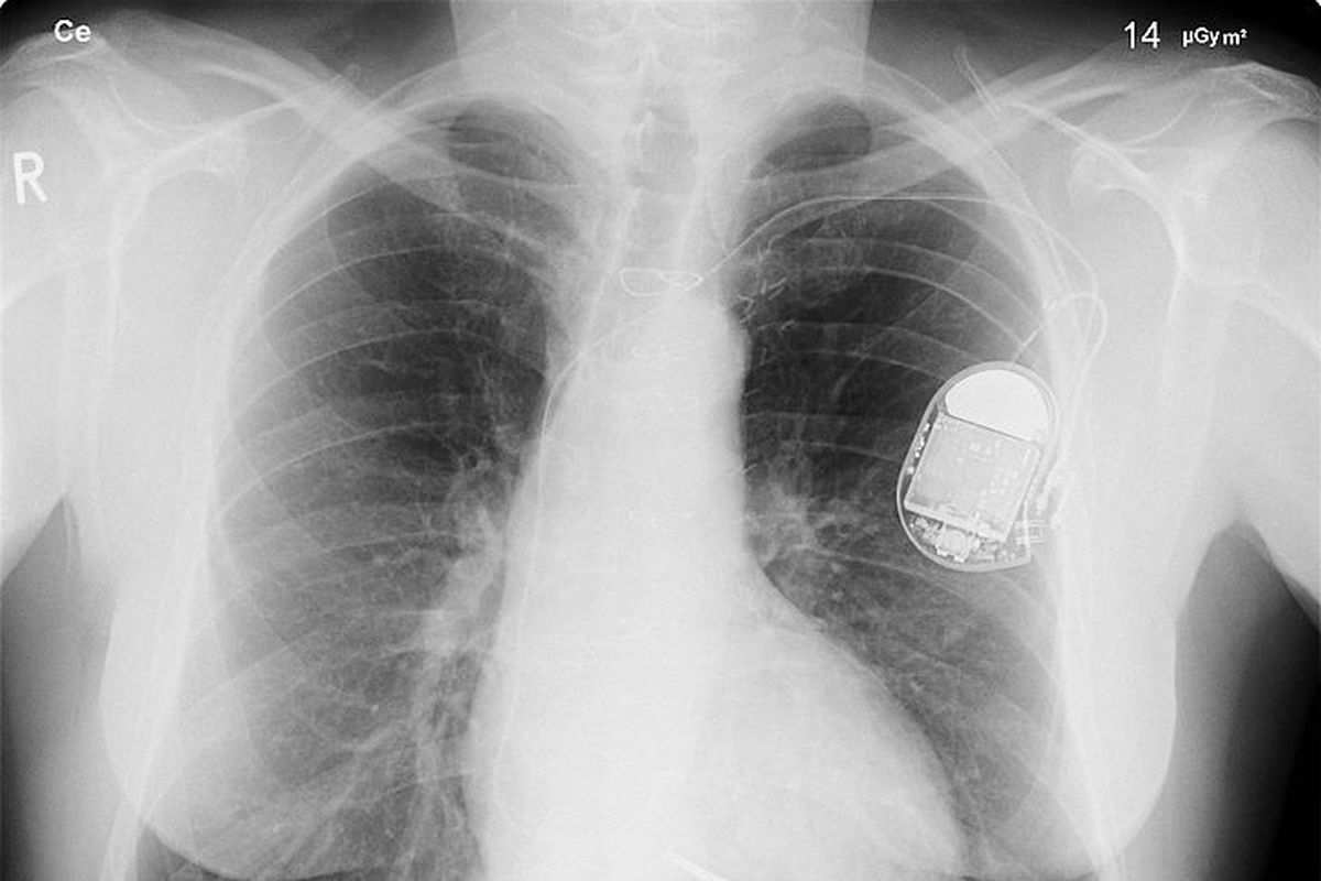 The Pacemaker Of The Future Might Be Made Of Heart Cells The Verge
