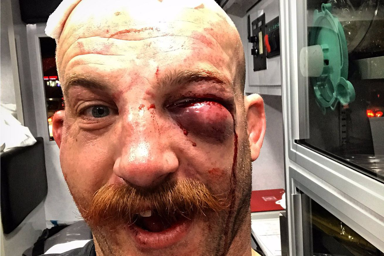 community news, Pic: Patrick Cummins shows off mangled face in 'ambulance selfie for the ladies' after UFC on FOX 25