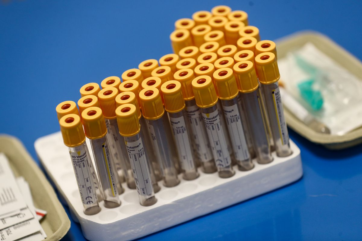 Test tubes to be used for blood samples sit on table at a antibody testing program at the Hollymore Ambulance Hub of the West Midlands Ambulance Service, operated by the West Midlands Ambulance Service NHS Foundation Trust, on June 5, 2020 in Birmingham, England.