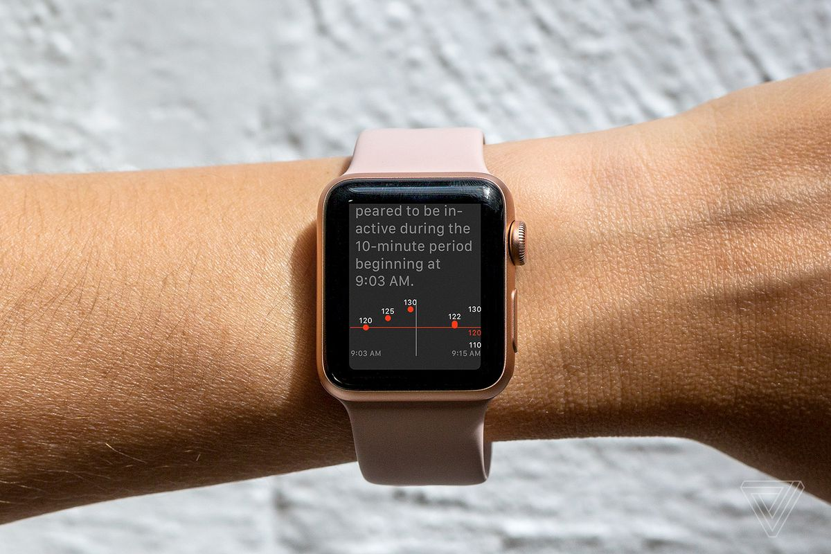 Apple Releases Update to Fix Watch Connectivity Issue