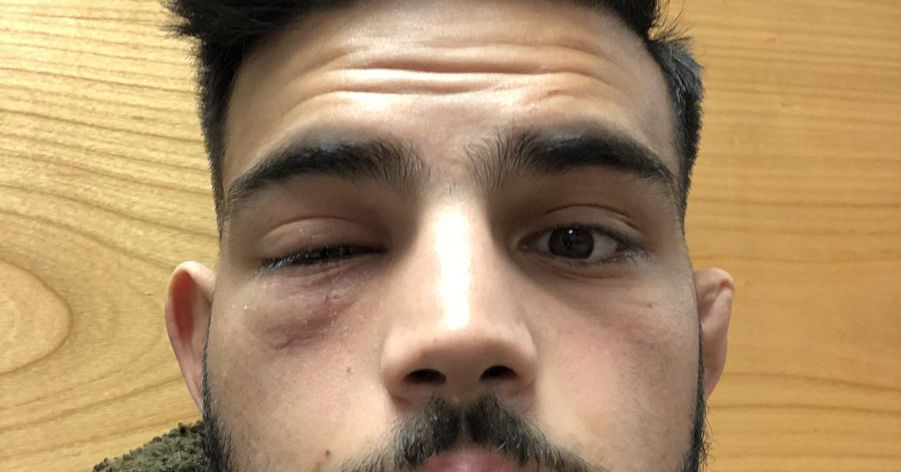 Nasrat Haqparast gives update on eye infection that caused UFC London withdrawal