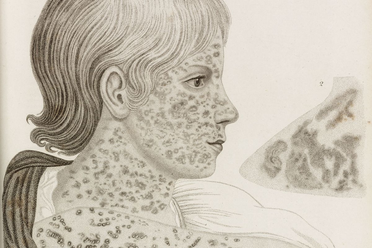 Measles outbreak 2019: 8 things everybody should know about
