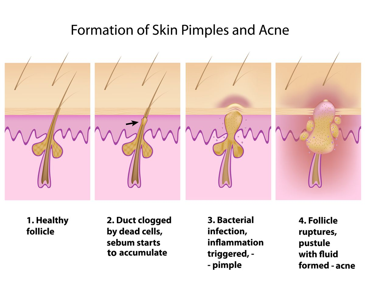pimple pus diagram why you shouldn t pop pimples mdash and 9 other things to know pimple diagram #7