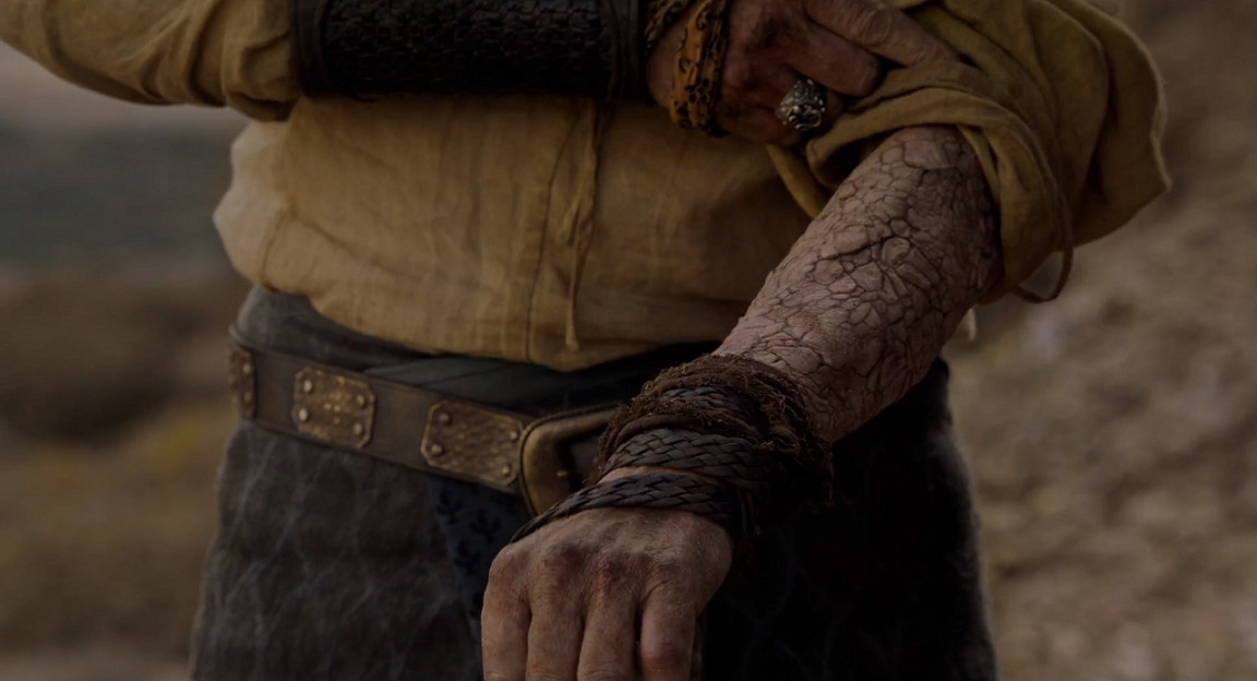 Jorah's arm with greyscale on Game of Thrones.