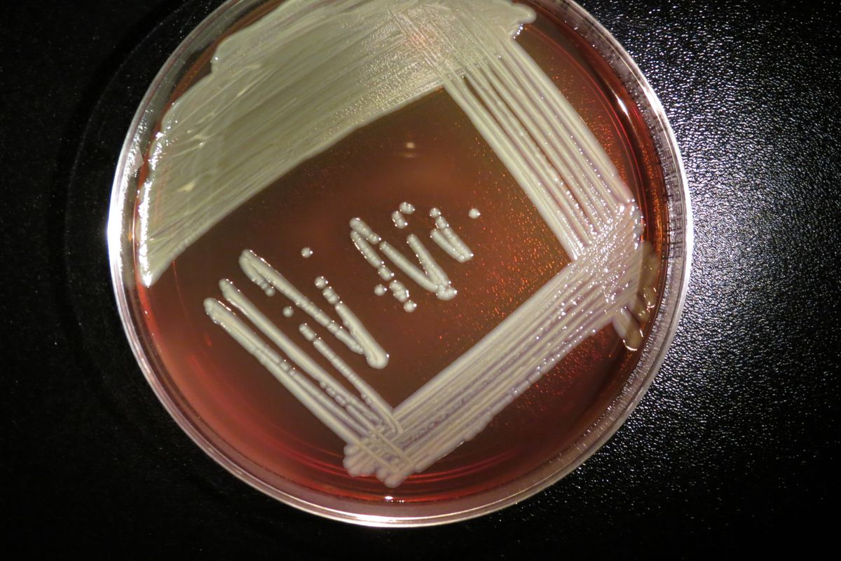 Elizabethkingia anophelis growing on a blood agar plate. (CDC)
