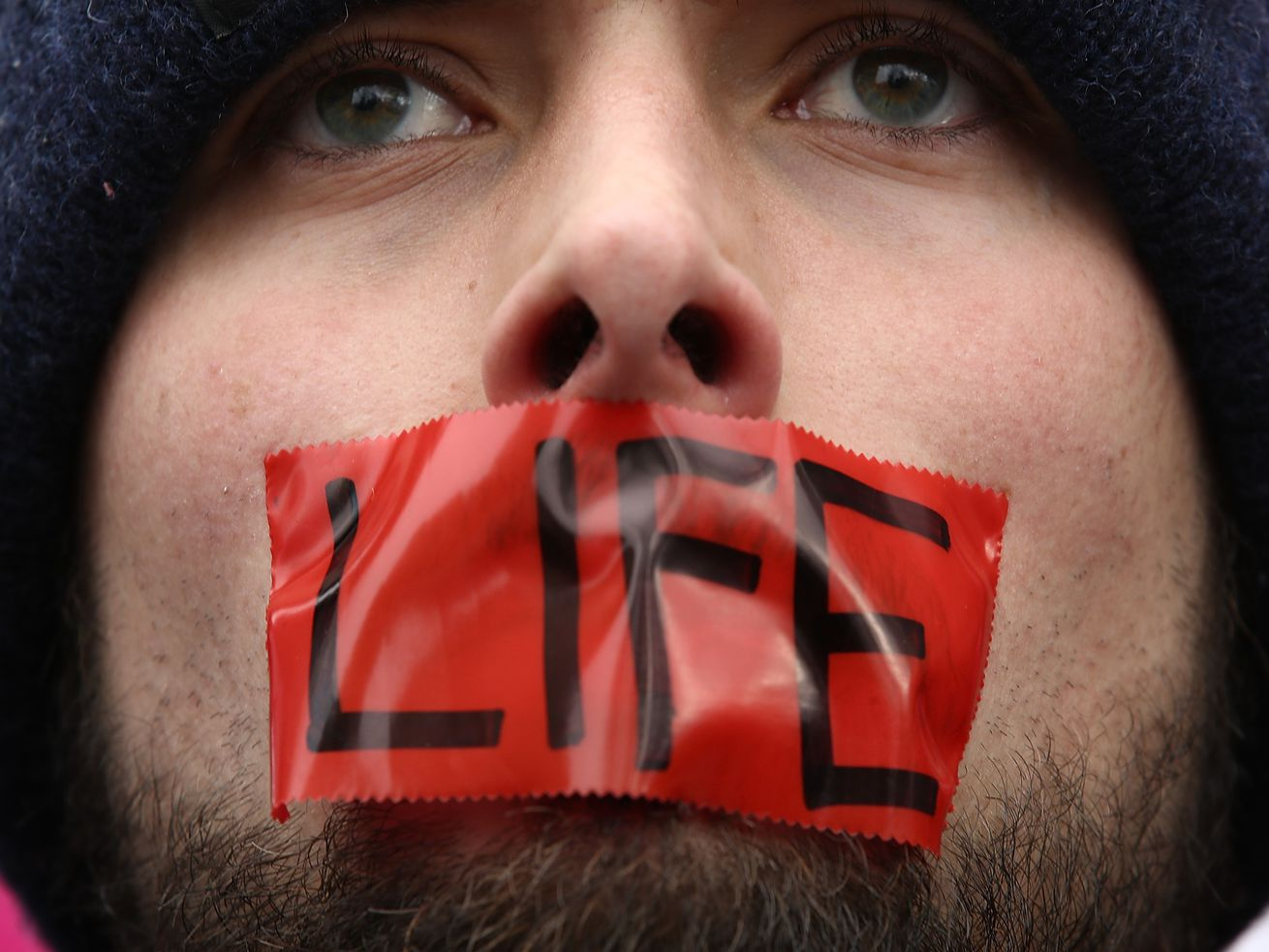 An anti-abortion activist rallies outside of the Supreme Court during the March for Life, January 27, 2017.