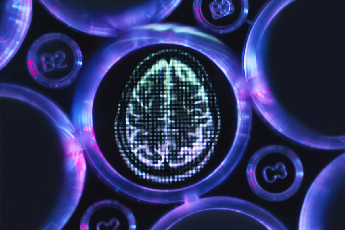 Could Modified Alzheimers Drug Treat >> Dementia Drug Research Biogen And Eisai Unveil Trial Results Vox