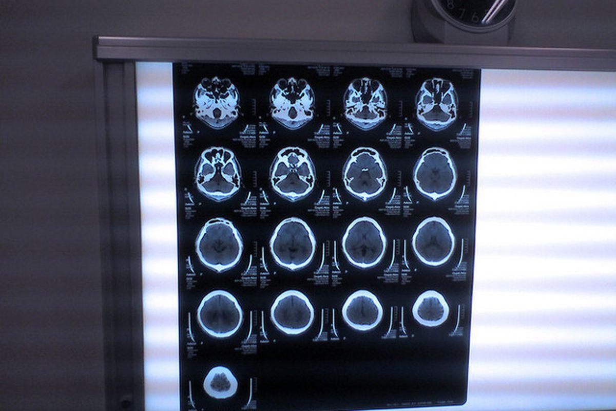 Flickr - ct brain scan