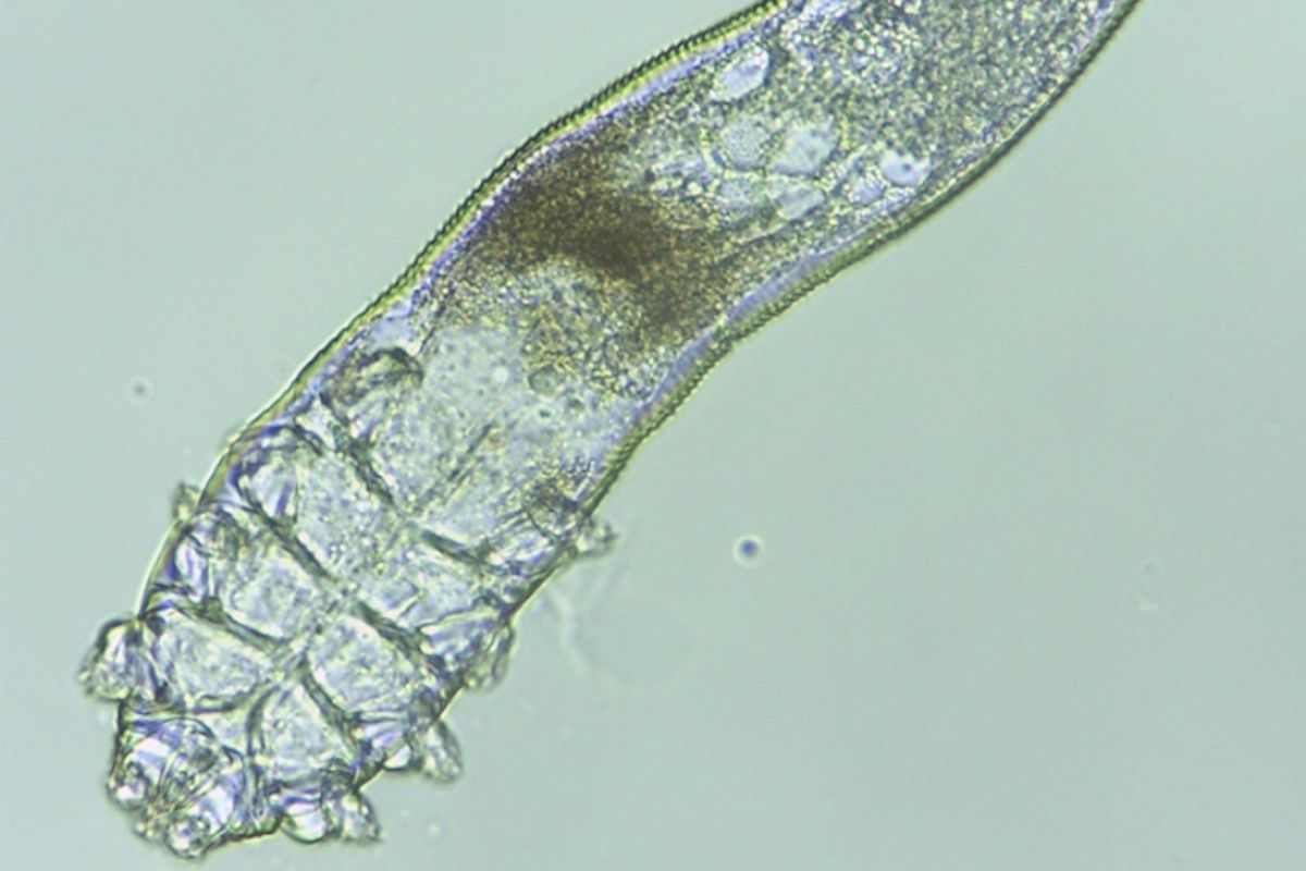 Demodex folliculorum, a type of mite that naturally lives on the human face.