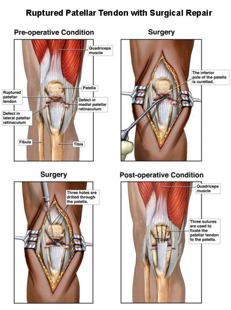 patella tendon rupture