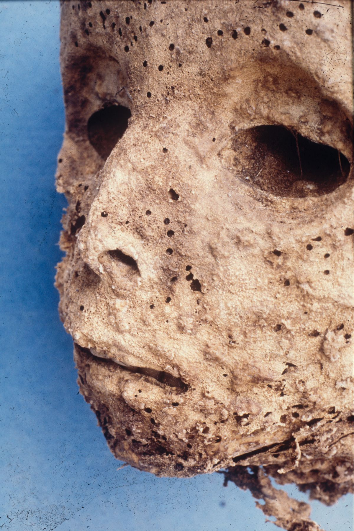 The mummy of a small boy buried during the 1500s in Italy was covered in a rash, once thought to be smallpox.