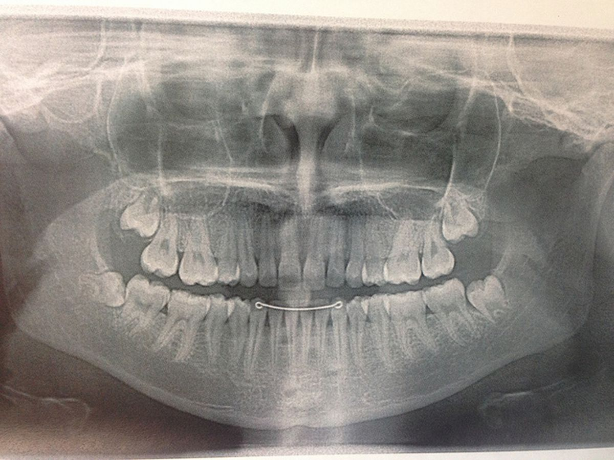 The risks and benefits of removing your wisdom teeth
