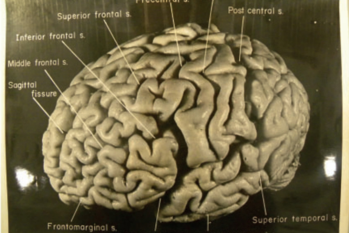 an analysis of human usage of brain by albert einstein And in fact, this information was used by florida state university's dean falk   albert einstein's corpus callosum, connecting the two cerebral.