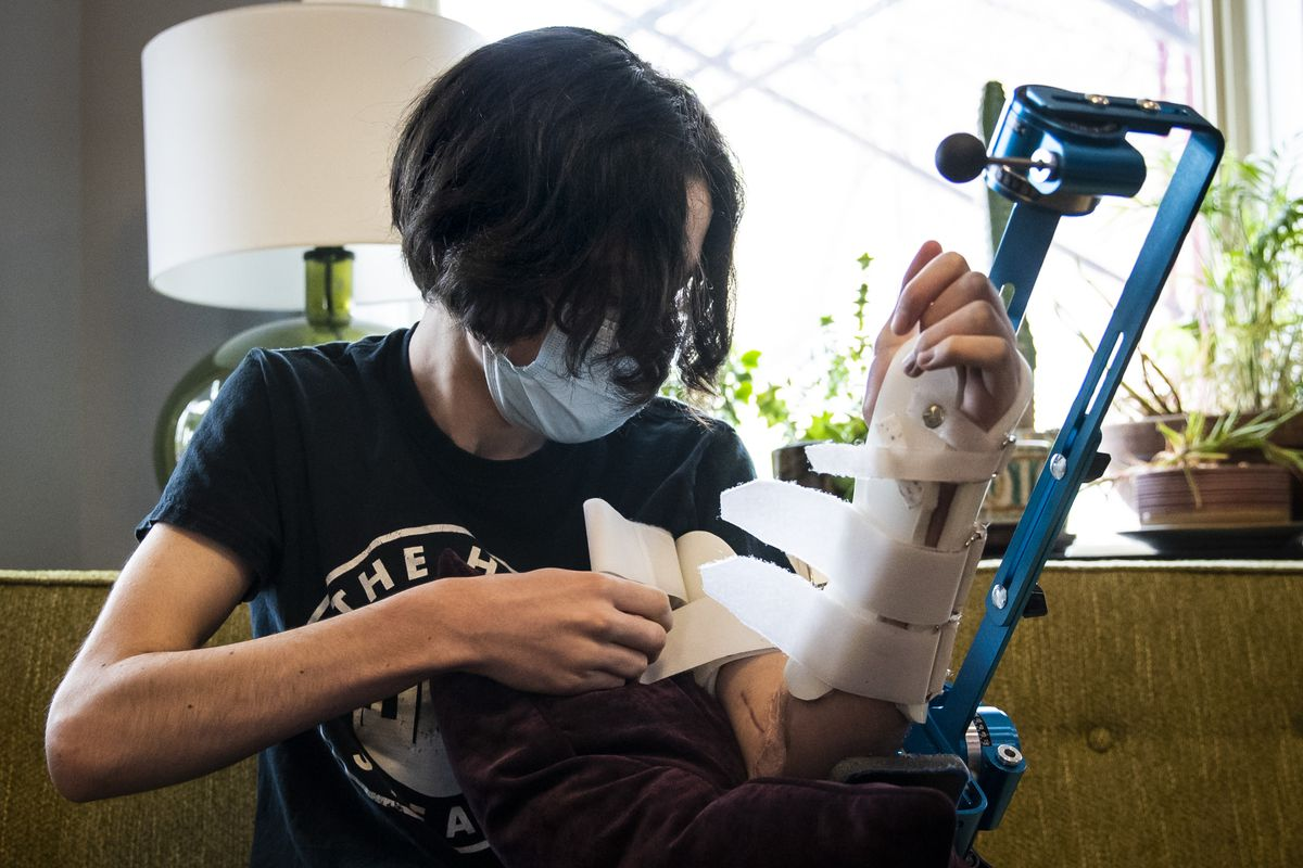 Rylan Wilder has had to work on his physical therapy on his left arm at home, too.