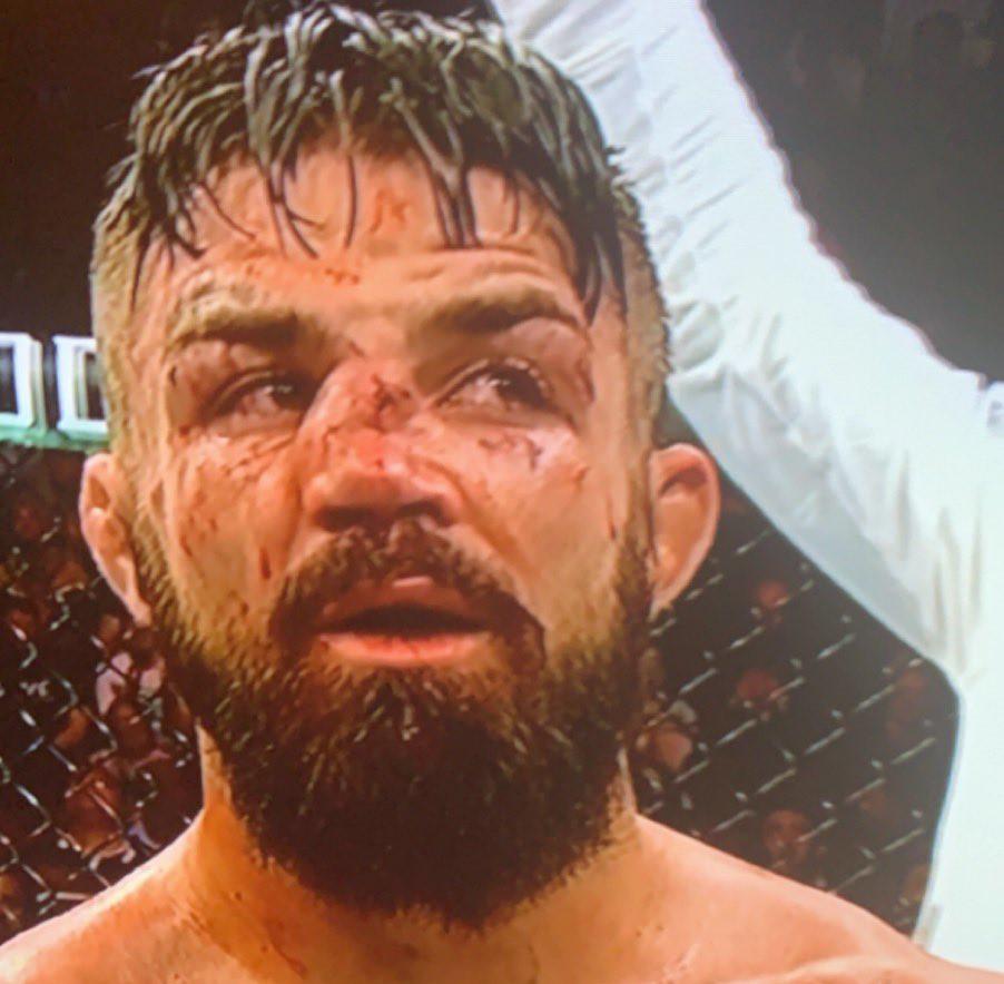 UFC Uruguay, Mike Perry, Broken Nose, Vicente Luque, Split Decision